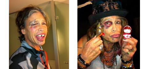 Steven Tyler injuries